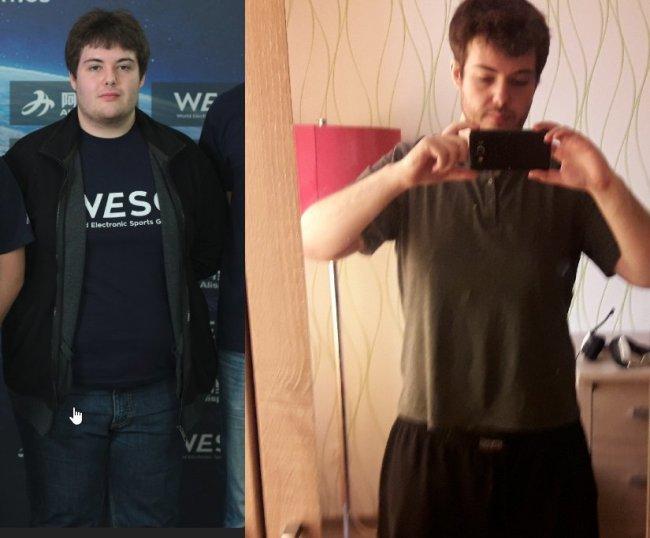 RmN- похудел на 40 килограмм за 1,5 года
